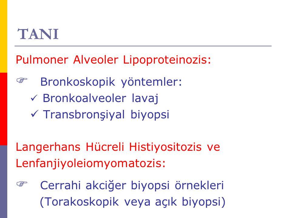 TANI Pulmoner Alveoler Lipoproteinozis:  Bronkoskopik yöntemler: Bronkoalveoler lavaj Transbronşiyal biyopsi Langerhans Hücreli Histiyositozis ve Len