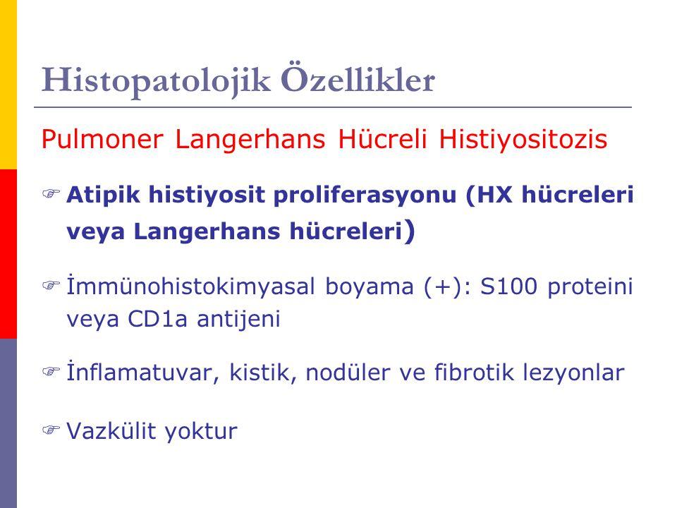 Histopatolojik Özellikler Pulmoner Langerhans Hücreli Histiyositozis  Atipik histiyosit proliferasyonu (HX hücreleri veya Langerhans hücreleri )  İm