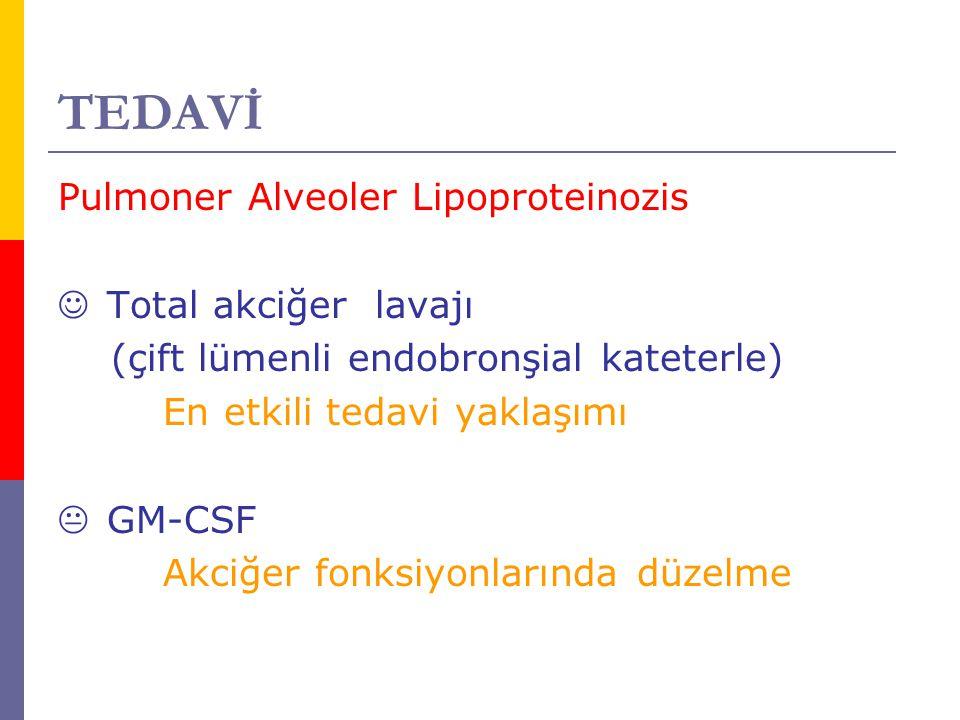 TEDAVİ Pulmoner Alveoler Lipoproteinozis Total akciğer lavajı (çift lümenli endobronşial kateterle) En etkili tedavi yaklaşımı  GM-CSF Akciğer fonksi
