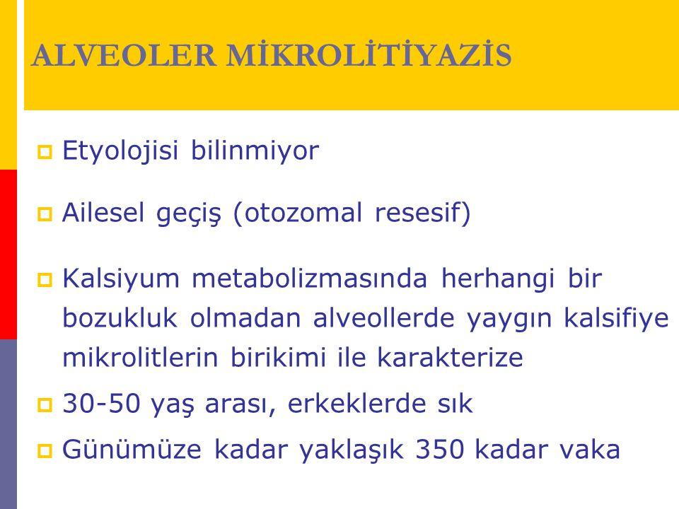 ALVEOLER MİKROLİTİYAZİS  Etyolojisi bilinmiyor  Ailesel geçiş (otozomal resesif)  Kalsiyum metabolizmasında herhangi bir bozukluk olmadan alveoller