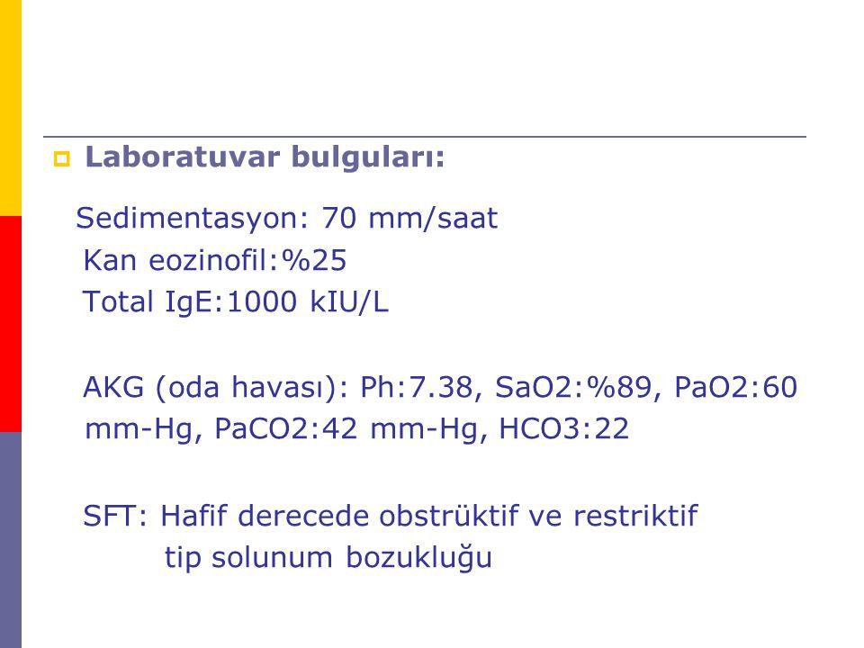  Laboratuvar bulguları: Sedimentasyon: 70 mm/saat Kan eozinofil:%25 Total IgE:1000 kIU/L AKG (oda havası): Ph:7.38, SaO2:%89, PaO2:60 mm-Hg, PaCO2:42