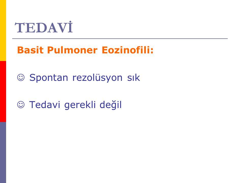 TEDAVİ Basit Pulmoner Eozinofili: Spontan rezolüsyon sık Tedavi gerekli değil