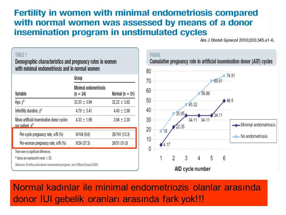 Normal kadınlar ile minimal endometriozis olanlar arasında donor IUI gebelik oranları arasında fark yok!!!