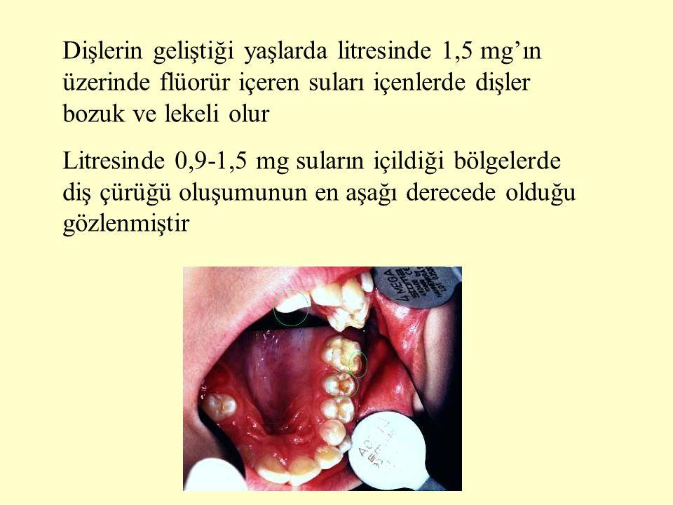Dişlerin geliştiği yaşlarda litresinde 1,5 mg'ın üzerinde flüorür içeren suları içenlerde dişler bozuk ve lekeli olur Litresinde 0,9-1,5 mg suların iç