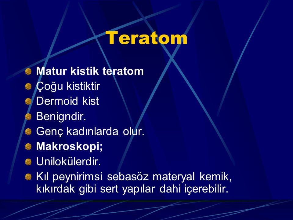 Teratom Matur kistik teratom Çoğu kistiktir Dermoid kist Benigndir. Genç kadınlarda olur. Makroskopi; Unilokülerdir. Kıl peynirimsi sebasöz materyal k