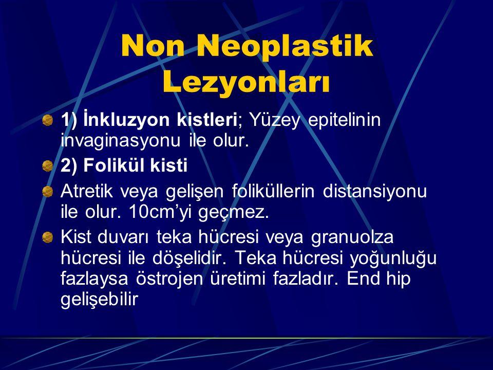 Non Neoplastik Lezyonları 1) İnkluzyon kistleri; Yüzey epitelinin invaginasyonu ile olur. 2) Folikül kisti Atretik veya gelişen foliküllerin distansiy