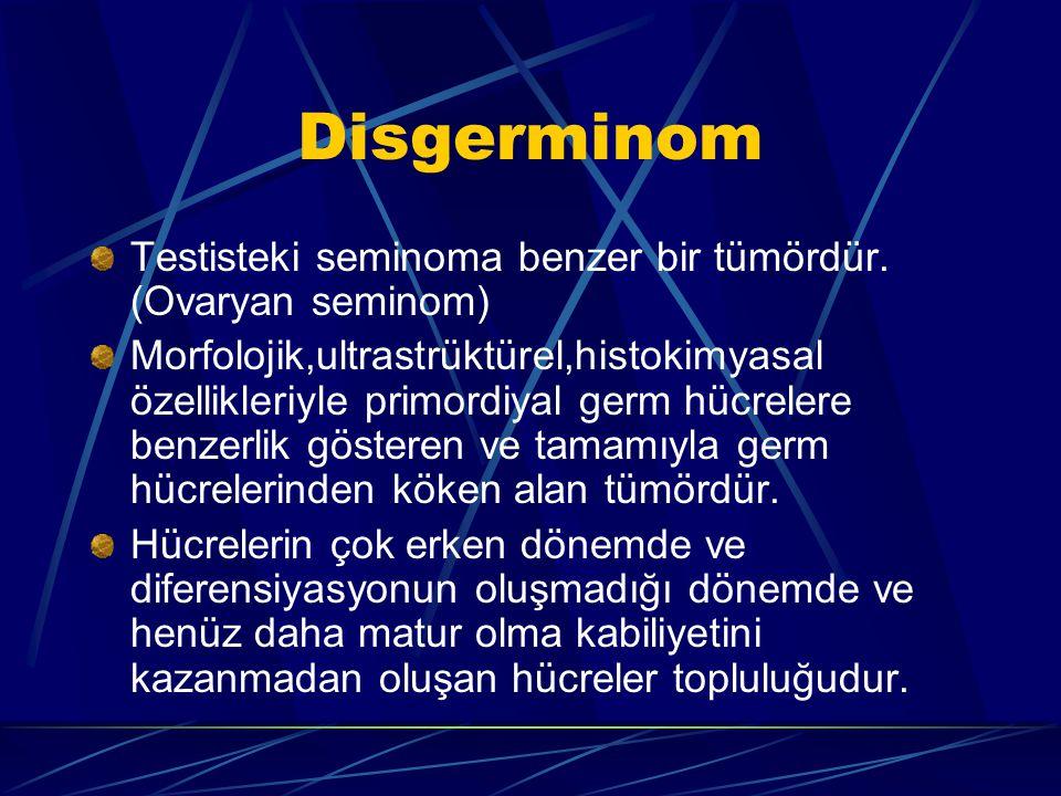 Disgerminom Testisteki seminoma benzer bir tümördür. (Ovaryan seminom) Morfolojik,ultrastrüktürel,histokimyasal özellikleriyle primordiyal germ hücrel