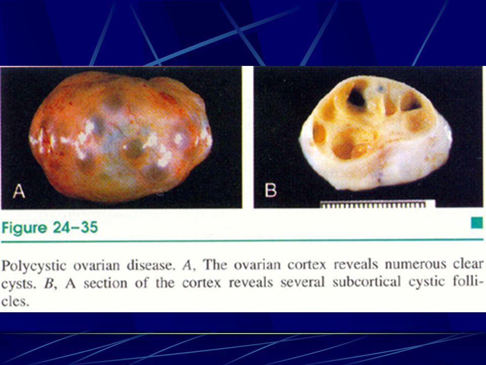 Endometriozis eksterna Endometriyal stroma ve glandların uterus dışında görülmesidir.