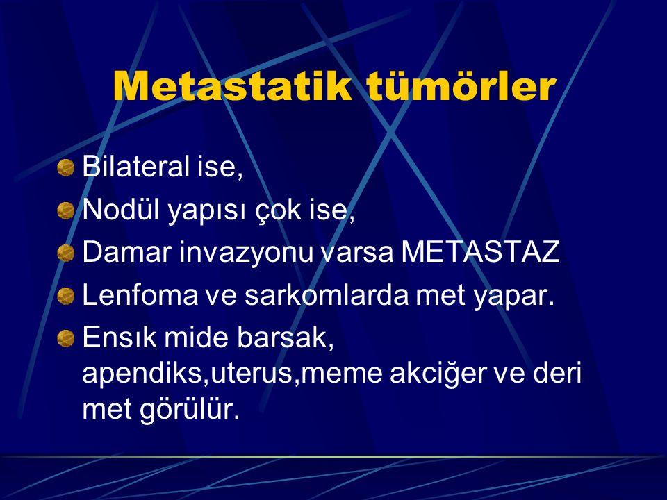 Metastatik tümörler Bilateral ise, Nodül yapısı çok ise, Damar invazyonu varsa METASTAZ Lenfoma ve sarkomlarda met yapar. Ensık mide barsak, apendiks,