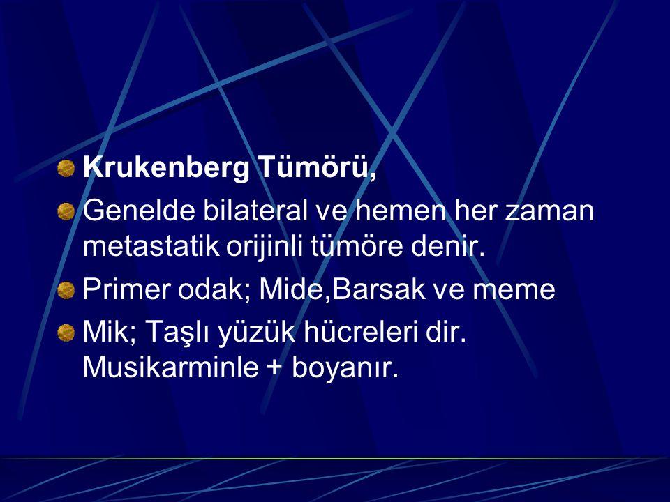 Krukenberg Tümörü, Genelde bilateral ve hemen her zaman metastatik orijinli tümöre denir. Primer odak; Mide,Barsak ve meme Mik; Taşlı yüzük hücreleri