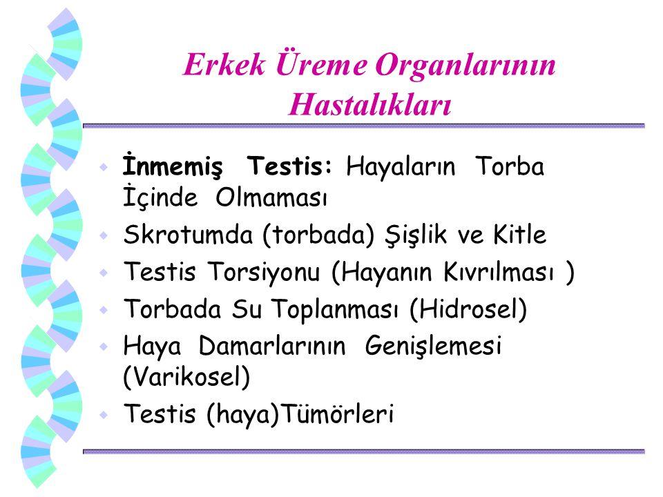 Erkek Üreme Organlarının Hastalıkları w İnmemiş Testis: Hayaların Torba İçinde Olmaması w Skrotumda (torbada) Şişlik ve Kitle w Testis Torsiyonu (Haya