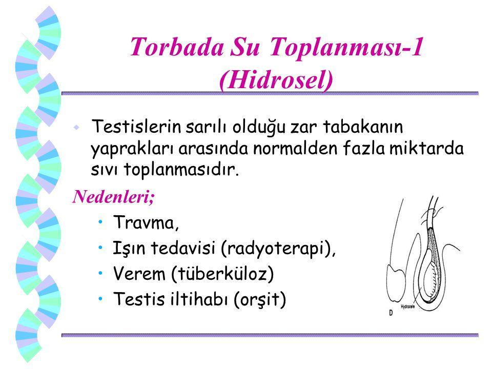 Torbada Su Toplanması-1 (Hidrosel) w Testislerin sarılı olduğu zar tabakanın yaprakları arasında normalden fazla miktarda sıvı toplanmasıdır. Nedenler