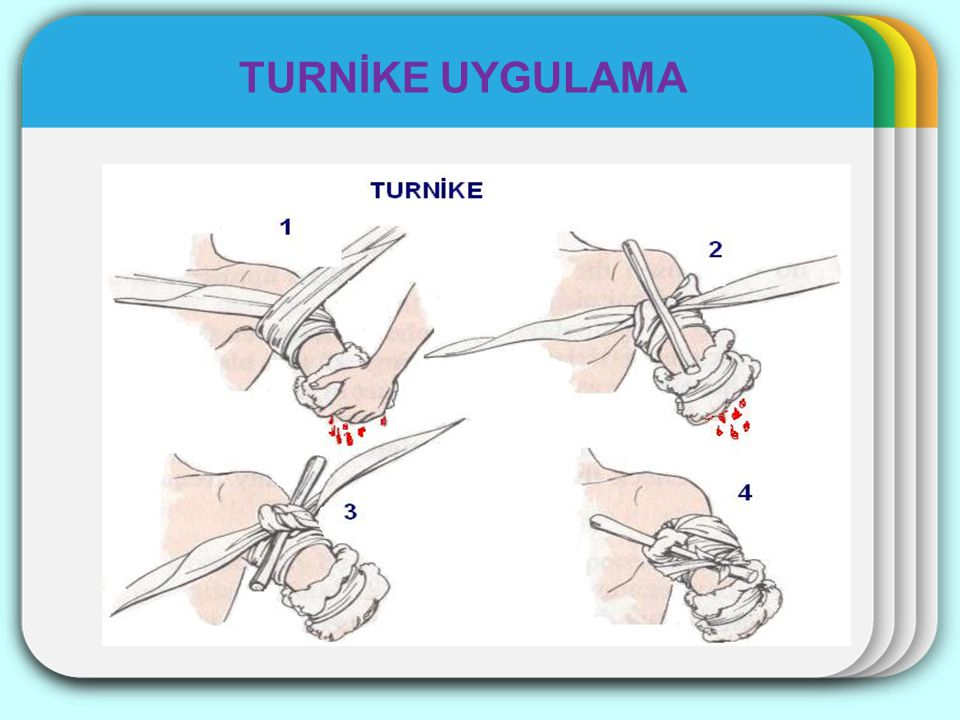 TURNİKE UYGULAMA