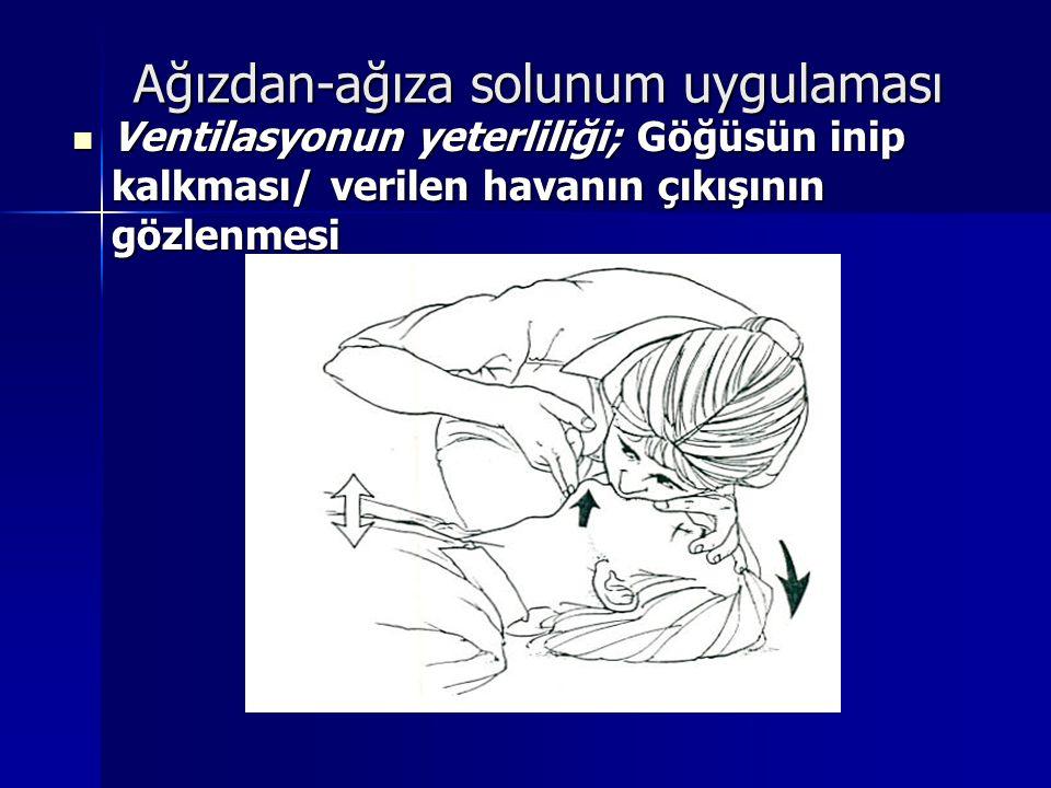 Ağızdan-ağıza solunum uygulaması Ventilasyonun yeterliliği; Göğüsün inip kalkması/ verilen havanın çıkışının gözlenmesi Ventilasyonun yeterliliği; Göğ