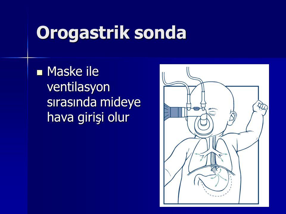Orogastrik sonda Maske ile ventilasyon sırasında mideye hava girişi olur Maske ile ventilasyon sırasında mideye hava girişi olur