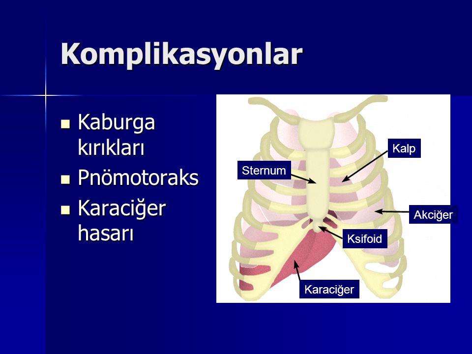 Komplikasyonlar Kaburga kırıkları Kaburga kırıkları Pnömotoraks Pnömotoraks Karaciğer hasarı Karaciğer hasarı Sternum Kalp Akciğer Ksifoid Karaciğer