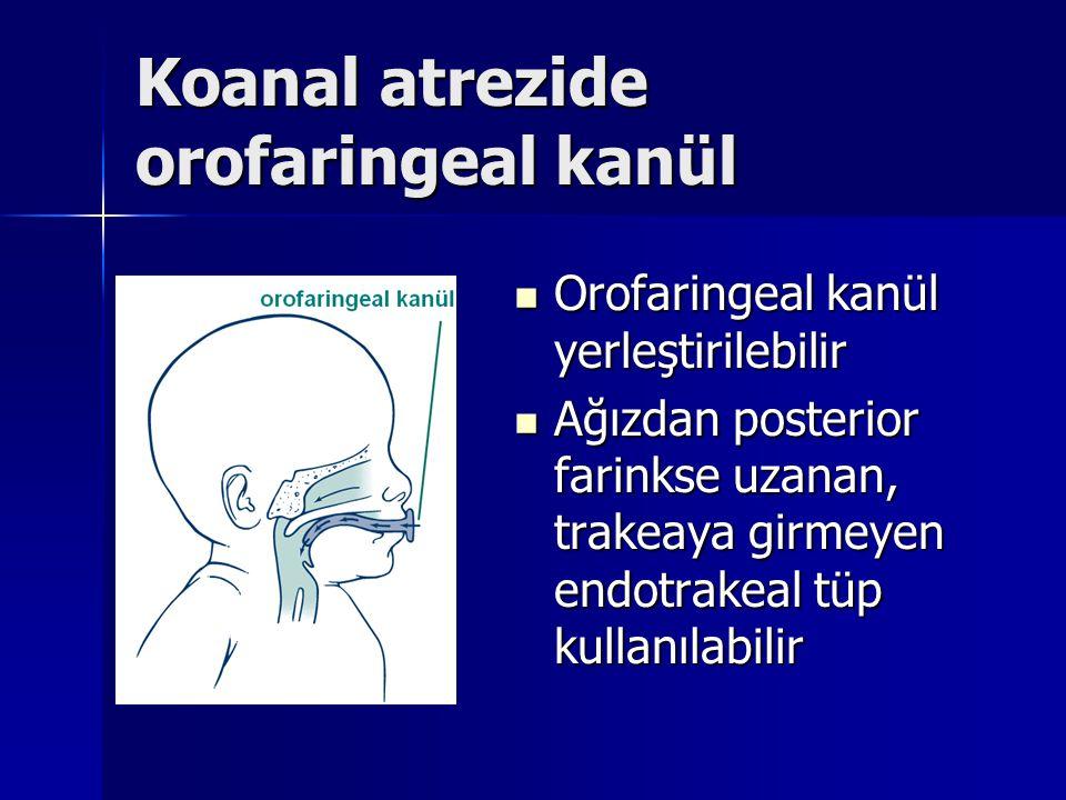 Koanal atrezide orofaringeal kanül Orofaringeal kanül yerleştirilebilir Orofaringeal kanül yerleştirilebilir Ağızdan posterior farinkse uzanan, trakeaya girmeyen endotrakeal tüp kullanılabilir Ağızdan posterior farinkse uzanan, trakeaya girmeyen endotrakeal tüp kullanılabilir