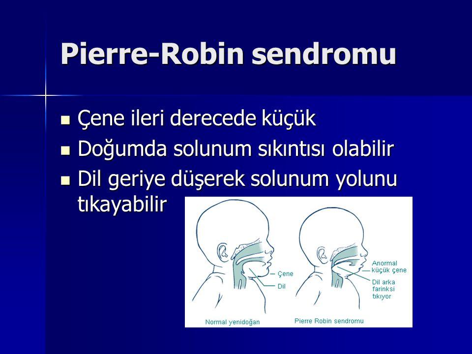 Pierre-Robin sendromu Çene ileri derecede küçük Çene ileri derecede küçük Doğumda solunum sıkıntısı olabilir Doğumda solunum sıkıntısı olabilir Dil geriye düşerek solunum yolunu tıkayabilir Dil geriye düşerek solunum yolunu tıkayabilir