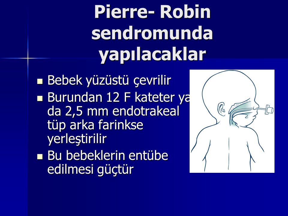 Pierre- Robin sendromunda yapılacaklar Bebek yüzüstü çevrilir Bebek yüzüstü çevrilir Burundan 12 F kateter ya da 2,5 mm endotrakeal tüp arka farinkse