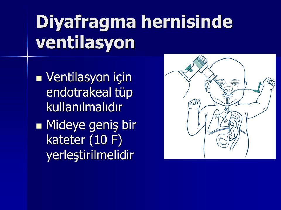 Diyafragma hernisinde ventilasyon Ventilasyon için endotrakeal tüp kullanılmalıdır Ventilasyon için endotrakeal tüp kullanılmalıdır Mideye geniş bir k