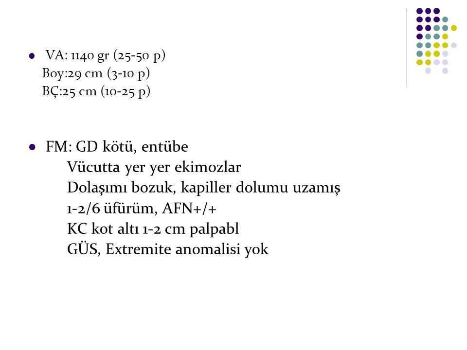 VA: 1140 gr (25-50 p) Boy:29 cm (3-10 p) BÇ:25 cm (10-25 p) FM: GD kötü, entübe Vücutta yer yer ekimozlar Dolaşımı bozuk, kapiller dolumu uzamış 1-2/6 üfürüm, AFN+/+ KC kot altı 1-2 cm palpabl GÜS, Extremite anomalisi yok
