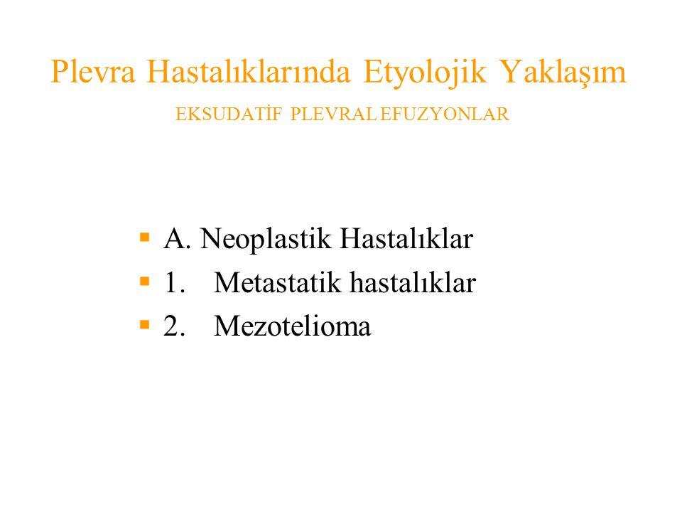 Plevra Hastalıklarında Etyolojik Yaklaşım EKSUDATİF PLEVRAL EFUZYONLAR  A.