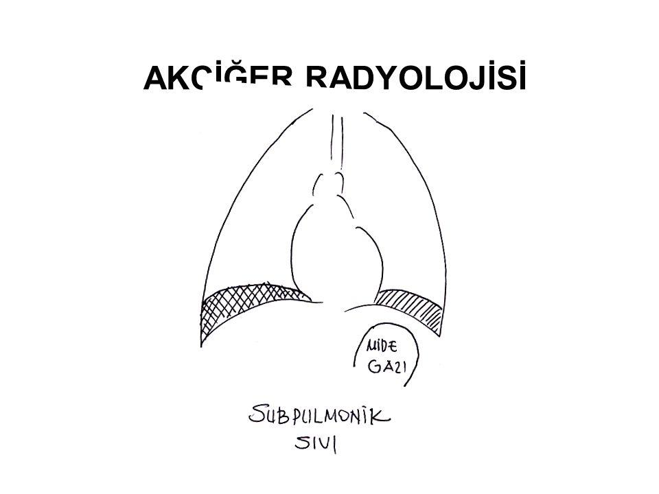Plevra Hastalıklarında Etyolojik Yaklaşım  Plevra, akciğerleri, mediasteni, diyafragmayı ye göğüs kafesini saran seröz bir membrandır.