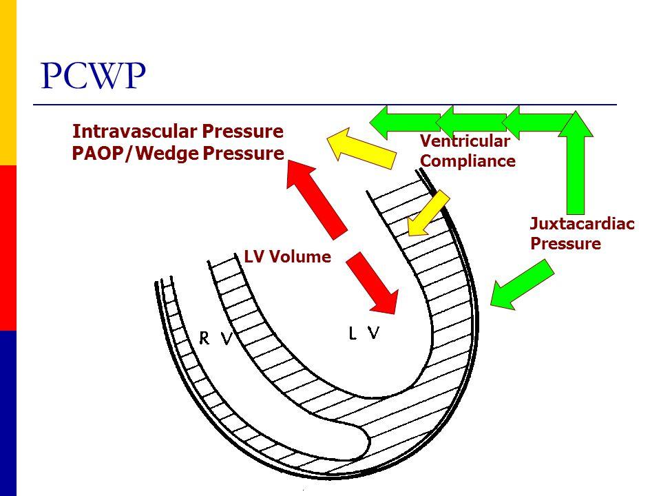 Juxtacardiac Pressure Ventricular Compliance LV Volume Intravascular Pressure PAOP/Wedge Pressure PCWP