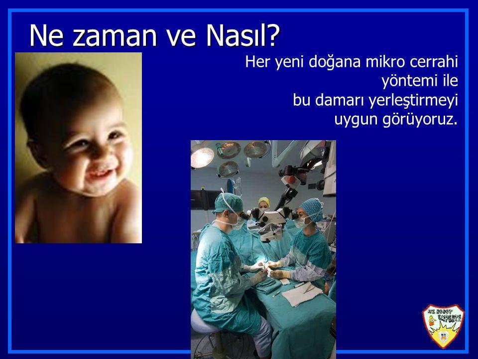 Ne zaman ve Nasıl? Her yeni doğana mikro cerrahi yöntemi ile bu damarı yerleştirmeyi uygun görüyoruz.