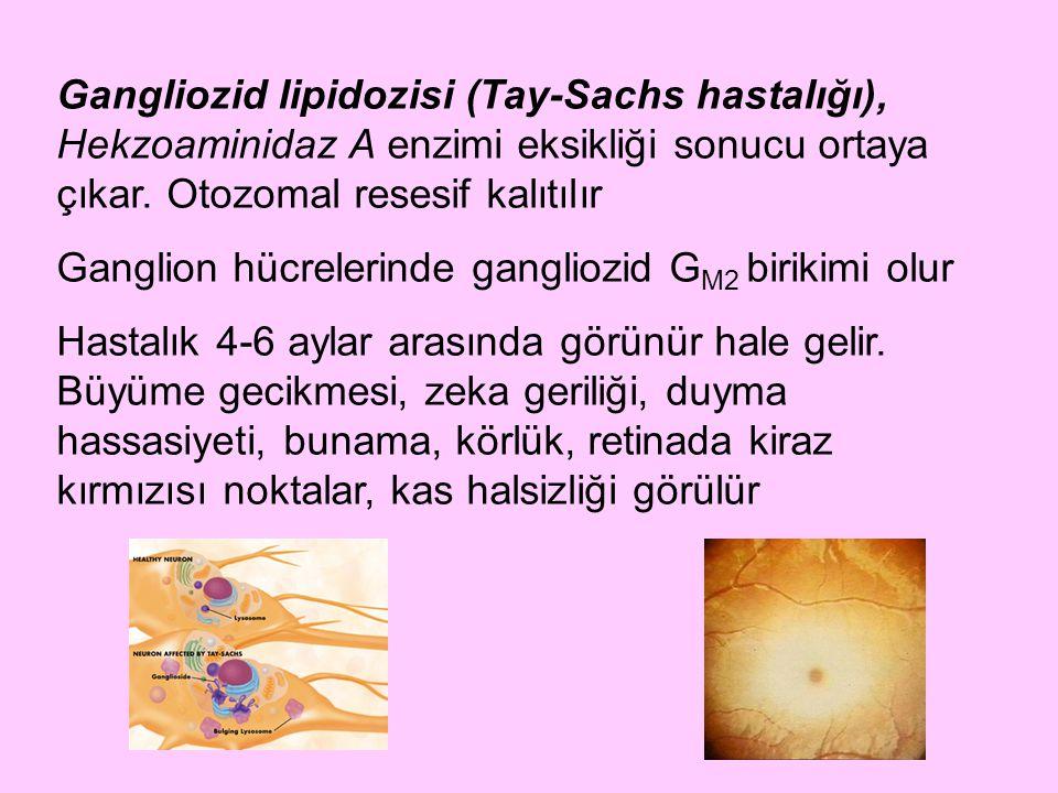 Gangliozid lipidozisi (Tay-Sachs hastalığı), Hekzoaminidaz A enzimi eksikliği sonucu ortaya çıkar. Otozomal resesif kalıtılır Ganglion hücrelerinde ga