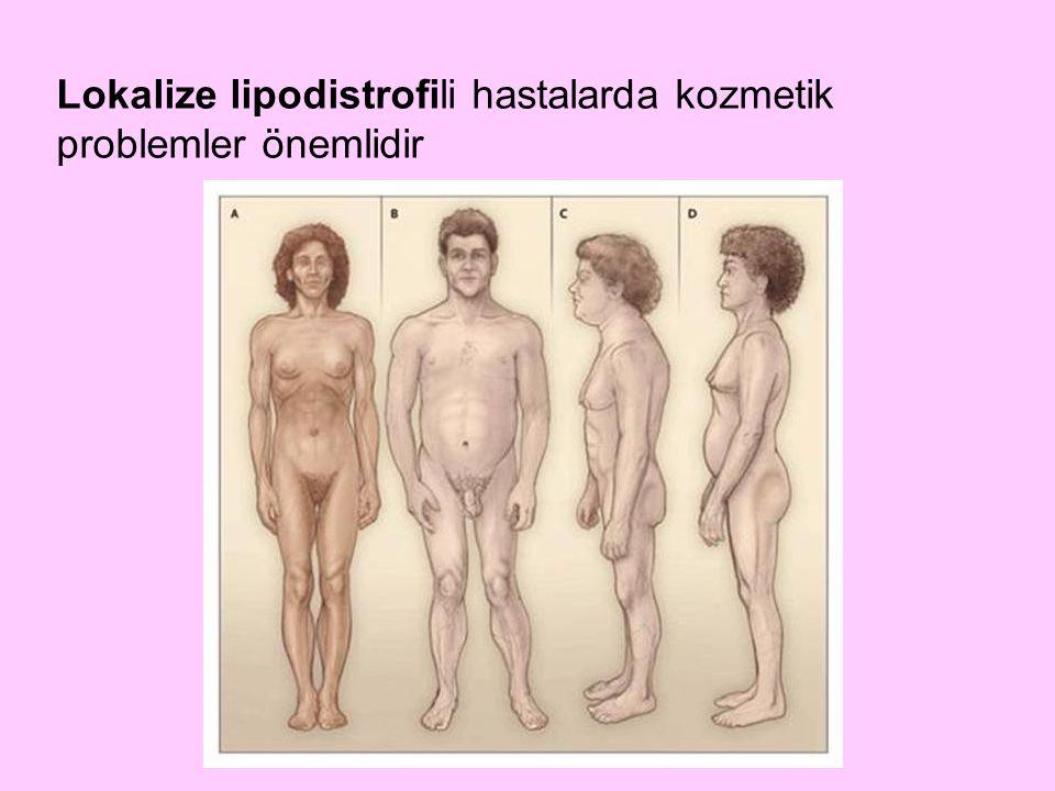 Lokalize lipodistrofili hastalarda kozmetik problemler önemlidir