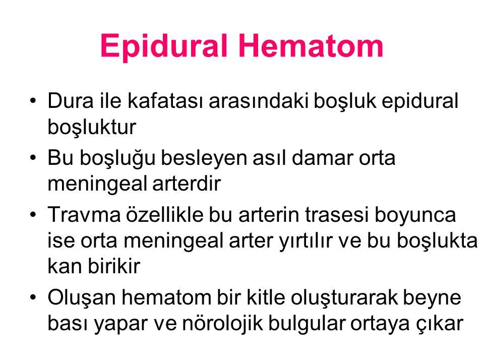 Epidural Hematom Dura ile kafatası arasındaki boşluk epidural boşluktur Bu boşluğu besleyen asıl damar orta meningeal arterdir Travma özellikle bu art