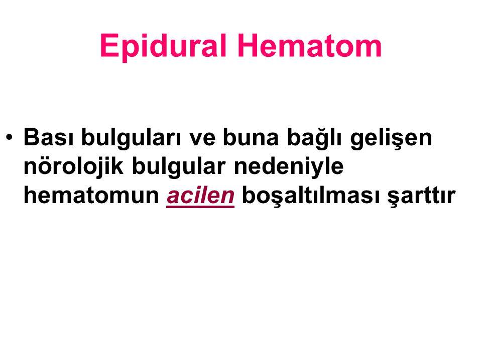 Epidural Hematom Bası bulguları ve buna bağlı gelişen nörolojik bulgular nedeniyle hematomun acilen boşaltılması şarttır