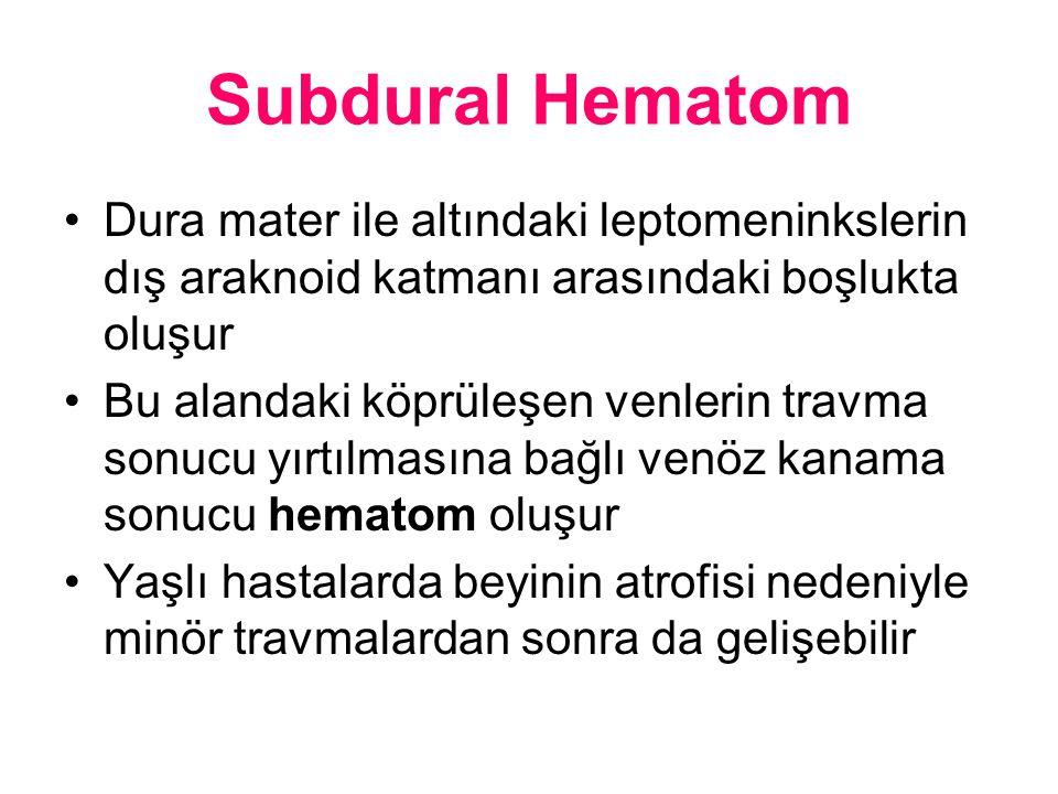 Subdural Hematom Dura mater ile altındaki leptomeninkslerin dış araknoid katmanı arasındaki boşlukta oluşur Bu alandaki köprüleşen venlerin travma son