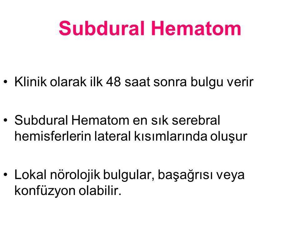 Subdural Hematom Klinik olarak ilk 48 saat sonra bulgu verir Subdural Hematom en sık serebral hemisferlerin lateral kısımlarında oluşur Lokal nöroloji