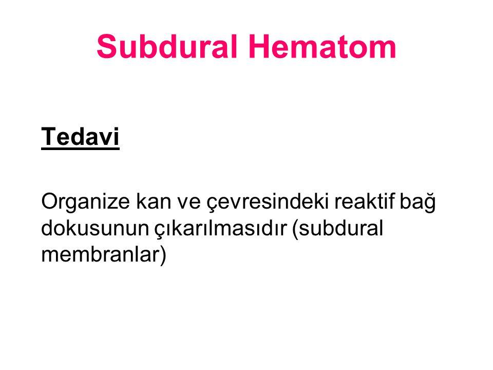 Subdural Hematom Tedavi Organize kan ve çevresindeki reaktif bağ dokusunun çıkarılmasıdır (subdural membranlar)
