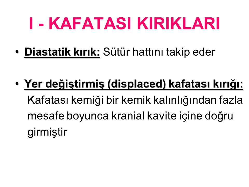 I - KAFATASI KIRIKLARI Diastatik kırık:Diastatik kırık: Sütür hattını takip eder Yer değiştirmiş (displaced) kafatası kırığı:Yer değiştirmiş (displace