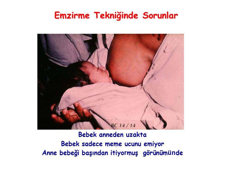 Bebek anneden uzakta Bebek sadece meme ucunu emiyor Anne bebeği başından itiyo r muş görünüm ün de