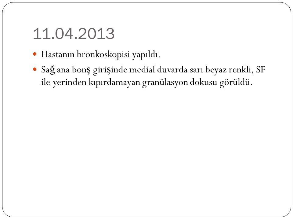 11.04.2013 Hastanın bronkoskopisi yapıldı.