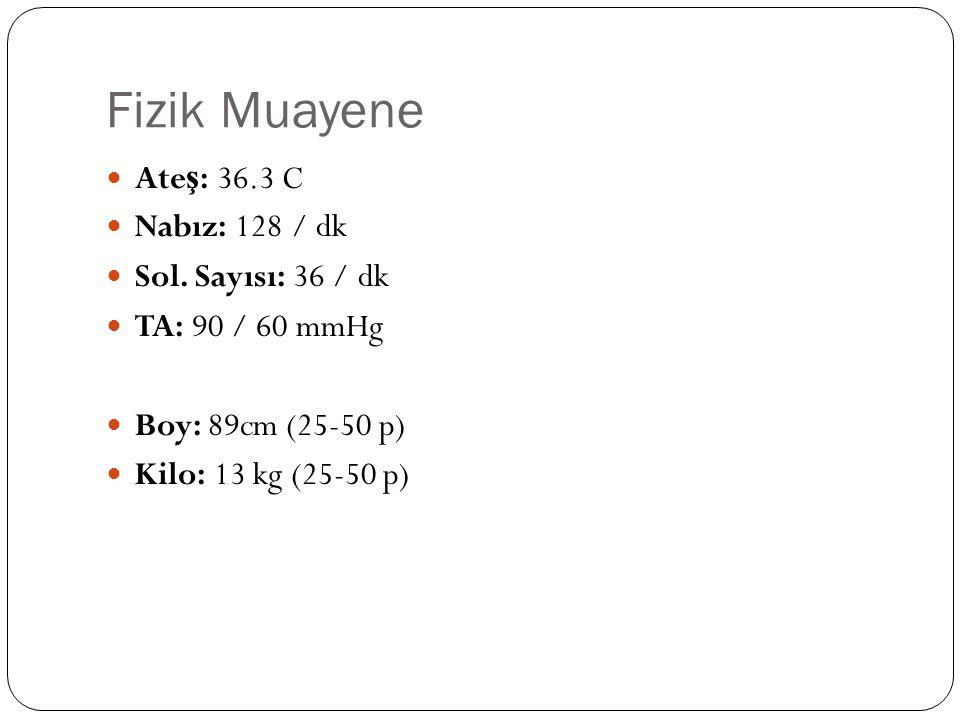 Fizik Muayene Ate ş : 36.3 C Nabız: 128 / dk Sol.
