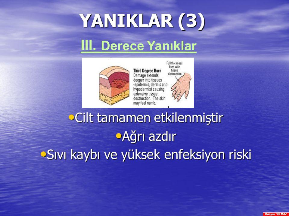 Rahşan YILMAZ YANIKLAR (3) Cilt tamamen etkilenmiştir Cilt tamamen etkilenmiştir Ağrı azdır Ağrı azdır Sıvı kaybı ve yüksek enfeksiyon riski Sıvı kayb