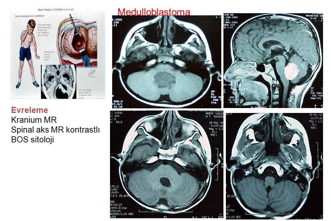 Medulloblastoma Evreleme Kranium MR Spinal aks MR kontrastlı BOS sitoloji