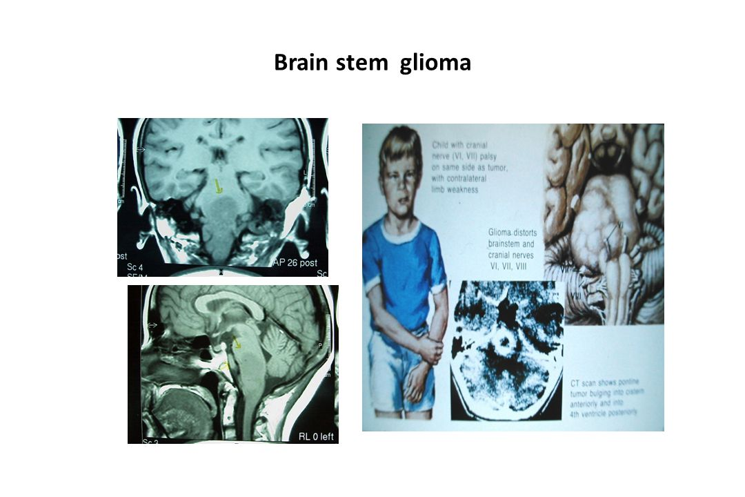 Brain stem glioma