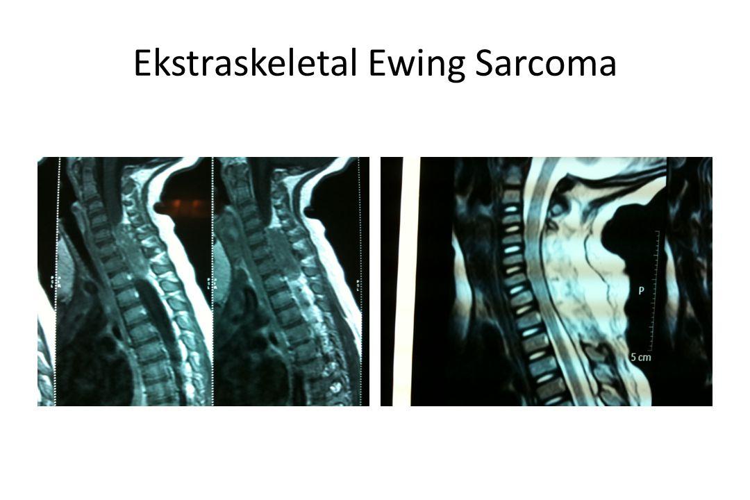 Ekstraskeletal Ewing Sarcoma