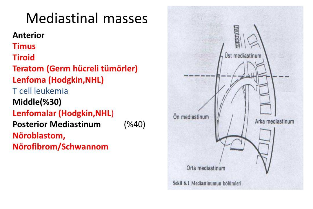 Mediastinal masses Anterior Timus Tiroid Teratom (Germ hücreli tümörler) Lenfoma (Hodgkin,NHL) T cell leukemia Middle(%30) Lenfomalar (Hodgkin,NHL) Po