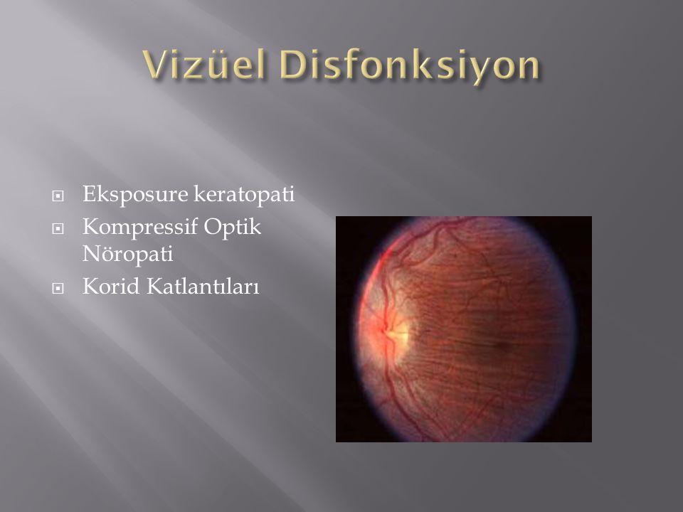  Eksposure keratopati  Kompressif Optik Nöropati  Korid Katlantıları