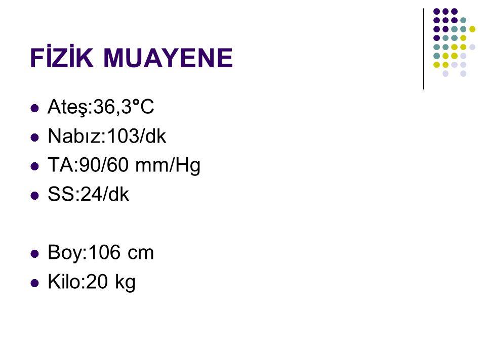 FİZİK MUAYENE Ateş:36,3°C Nabız:103/dk TA:90/60 mm/Hg SS:24/dk Boy:106 cm Kilo:20 kg