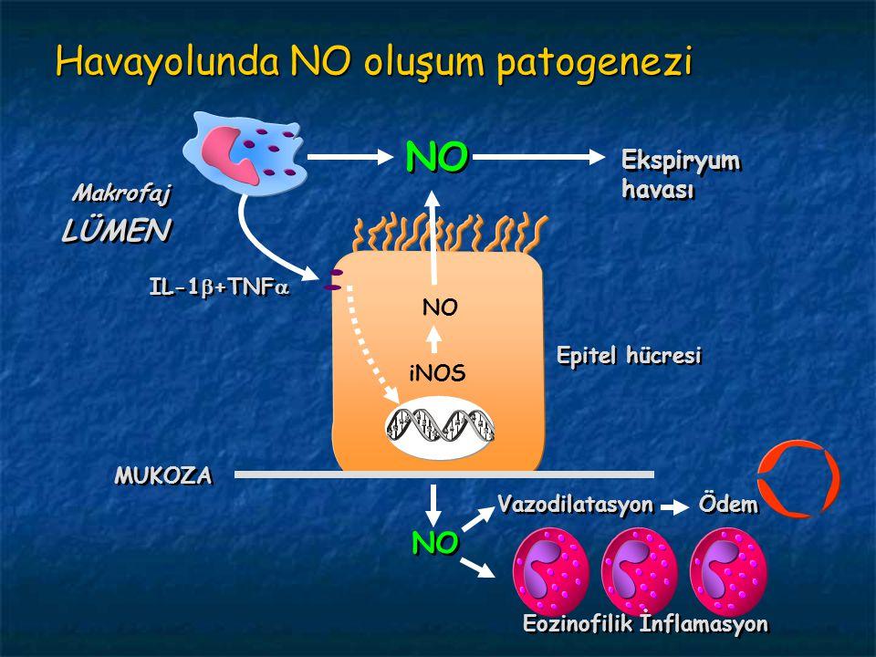 Havayolunda NO oluşum patogenezi Eozinofilik İnflamasyon  Vazodilatasyon Ödem LÜMEN Makrofaj NO Ekspiryum havası IL-1  +TNF  Epitel hücresi iNOS NO MUKOZA NO