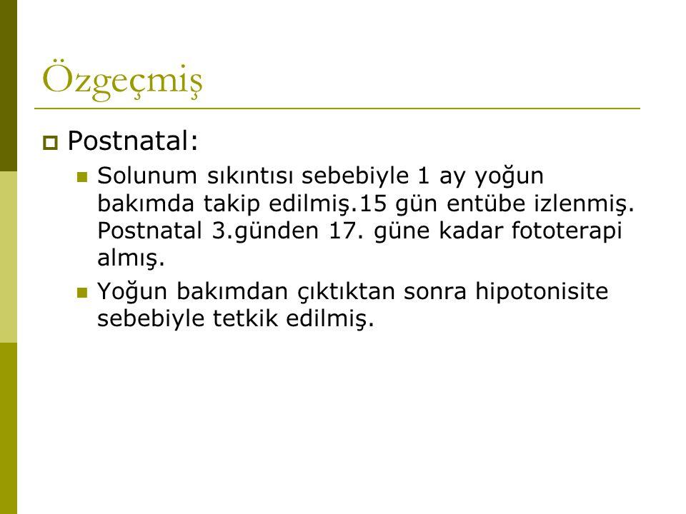 Özgeçmiş  Postnatal: Solunum sıkıntısı sebebiyle 1 ay yoğun bakımda takip edilmiş.15 gün entübe izlenmiş. Postnatal 3.günden 17. güne kadar fototerap