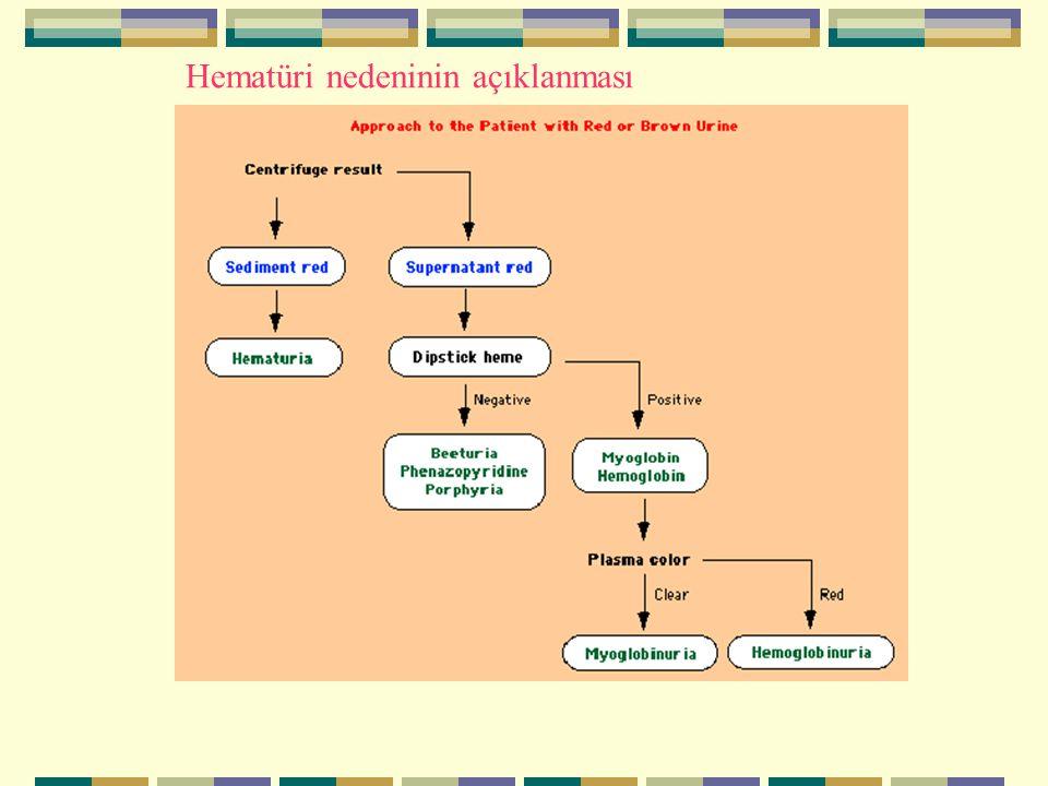 Hematüri nedeninin açıklanması